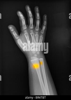 X-ray de l'avant-bras d'une fillette de 3 ans montrant une boucle, greenstick, fracture de l'extrémité distale du Banque D'Images