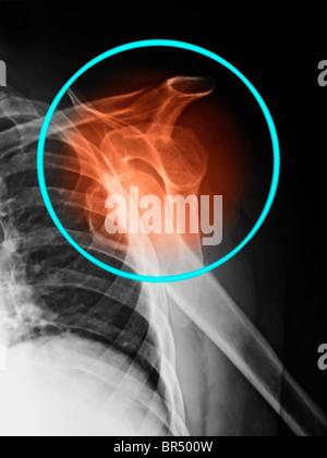 X-ray montrant une luxation de l'épaule dans un homme de 69 ans Banque D'Images