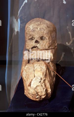 Pérou, Leymebamba, Leimebamba, Musée. Maman trouvés à Laguna de los Condores. (Décompressé à partir de leurs faisceaux Banque D'Images