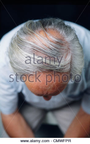 Haut de la tête de balding senior man Banque D'Images