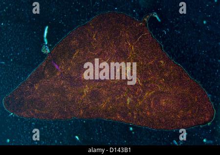 Microphotographie de pancréas, de tissus tissus pancréatiques typiques de tissus dans le jéjunum Banque D'Images