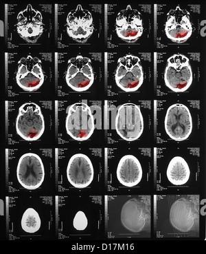 CT scan d'un homme âgé avec ancien infarctus occipital
