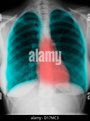 La radiographie du thorax normale d'une femme de 24 ans Banque D'Images