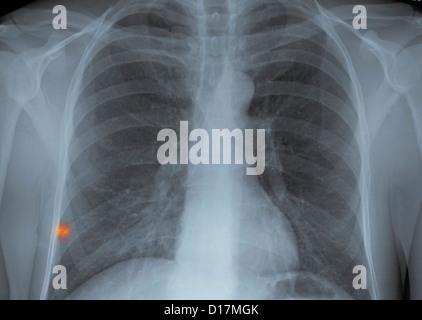 La radiographie pulmonaire en corps étrangers métalliques Banque D'Images