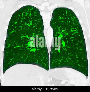 La TDM coronale de poitrine, la fibrosiscystic Banque D'Images