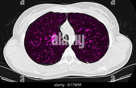 Tomodensitométrie axiale de la poitrine, la fibrosiscystic Banque D'Images