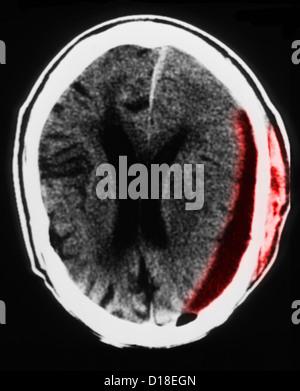 Chef CT scan avec hématome sous-, atrophie
