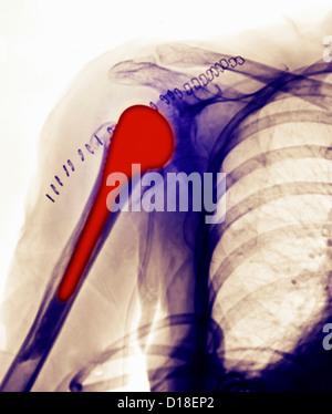 X-ray, dans un remplacement de l'épaule 78 ans, femme Banque D'Images