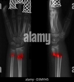 X-ray montrant une fracture de la partie distale du radius et cubitus dans une jeune fille de 12 ans Banque D'Images