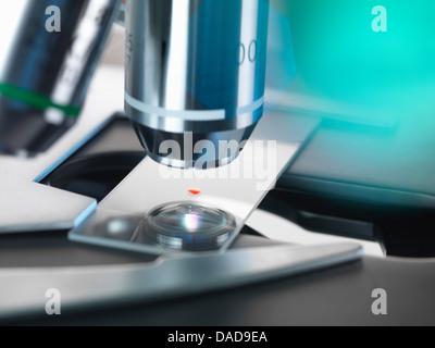 Par test sanguin, un microscope optique de l'examen d'un échantillon de sang dans un laboratoire Banque D'Images