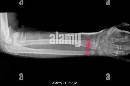 X-ray de fracture de l'avant-bras du garçon de 11 ans Banque D'Images