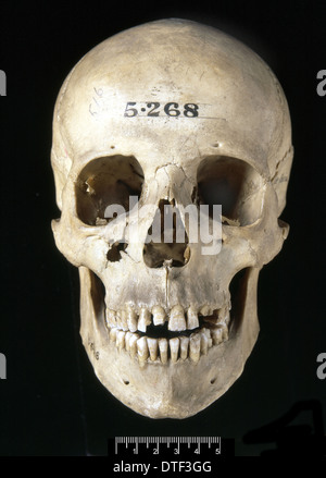 L'Homo sapiens crâne (Italie) Banque D'Images