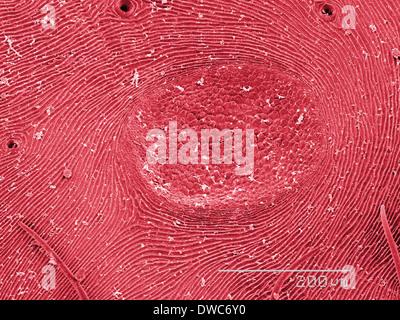 Coloured SEM d'orb weaver abdomen d'araignée Banque D'Images