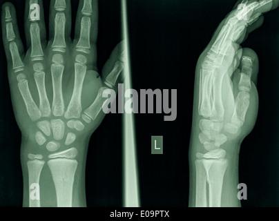 D'un poignet 9 ans homme patient souffrant d'une Fracture du radius distal Banque D'Images