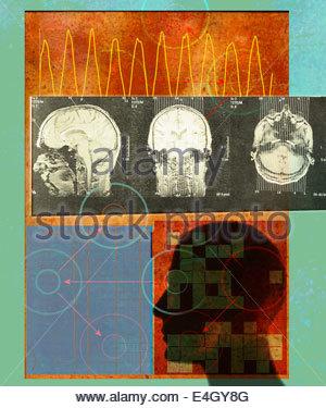 Ondes cérébrales et IRM de tête de l'homme Banque D'Images
