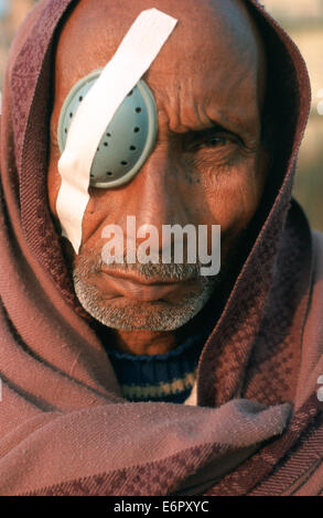Homme qui avait la chirurgie de la cataracte au cours d'un camp collectif dirigé par les chirurgiens qui exploitent les pauvres gratuitement ( Népal)