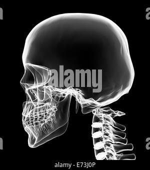 X-ray de la luminosité de la tête et du cou blanc avec fond noir Banque D'Images