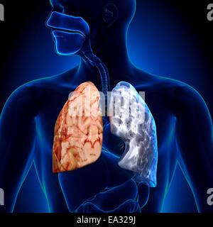 Fumeur vs non-fumeur - Anatomie Poumons Banque D'Images