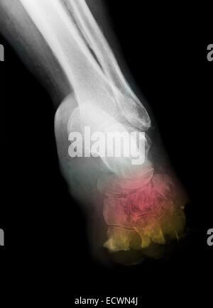 X-ray montrant l'ostéomyélite du pied diabétique dans une femme. Banque D'Images