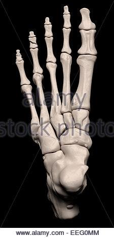 Illustration médicale numérique illustrant une fracture de la 3ème phalange intermédiaire du pied. Top (dorsale). Banque D'Images