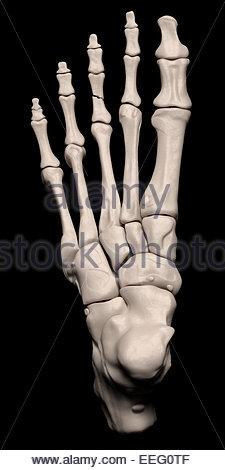Illustration médicale numérique illustrant une fracture de la 3ème phalange proximale du pied. Top (dorsale). Banque D'Images