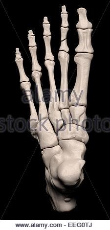 Illustration médicale numérique représentant une fracture de la 2ème phalange proximale du pied. Top (dorsale). Banque D'Images