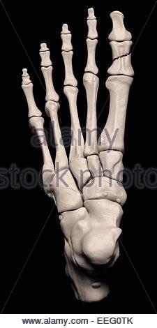Illustration médicale numérique illustrant une fracture de la 1ère phalange proximale (hallux, gros orteil) du pied. Banque D'Images