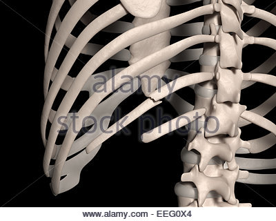 Illustration d'une fracture costale Banque D'Images, Photo Stock ...