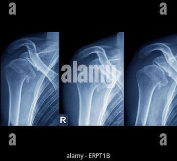 Les rayons X de couleur de l'épaule droite d'un patient de 36 ans qui a, à maintes reprises, la luxation de l'articulation. Banque D'Images