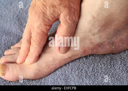 Un homme vérifie le sec, une desquamation de la peau de son