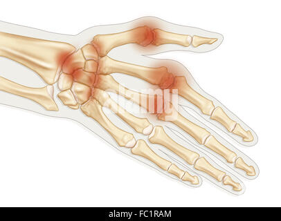 l arthrite rhumatoïde