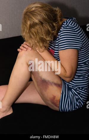 La violence domestique à l'égard des femme