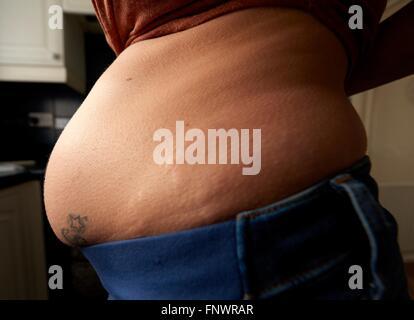 Les vergetures qui pèse sur une femme enceinte england uk Banque D'Images