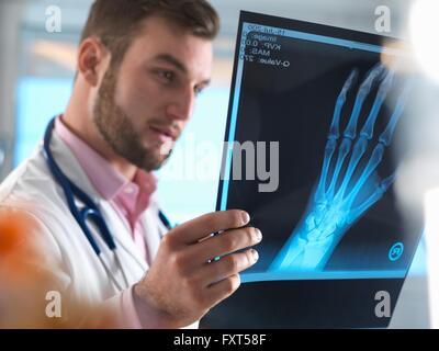 Médecin Junior examining x-ray de main fracturée à l'hôpital Banque D'Images
