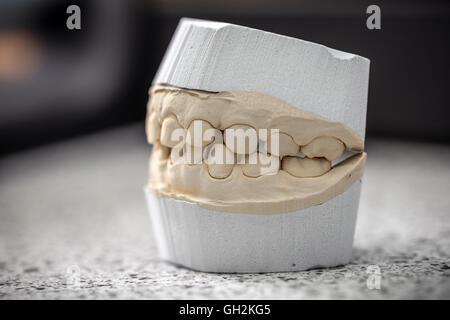 Moulage dentaire modèle en plâtre de gypse stomatologic mâchoires humaines laboratoire de prothèse Banque D'Images