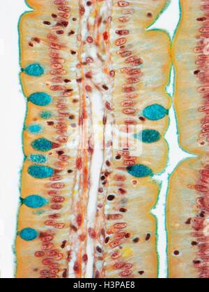 L'intestin grêle. La lumière microphotographie (LM) d'une section à travers le doigt, (projections) villosités du Banque D'Images