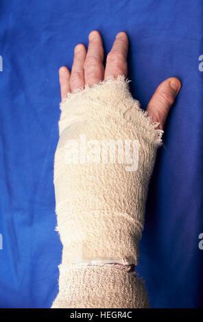 La main gauche bandée après chirurgie du canal carpien blessures Banque D'Images