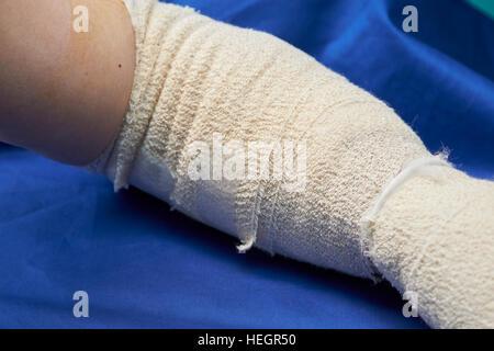 L'avant-bras gauche bandée et cubital après chirurgie du canal carpien blessures Banque D'Images