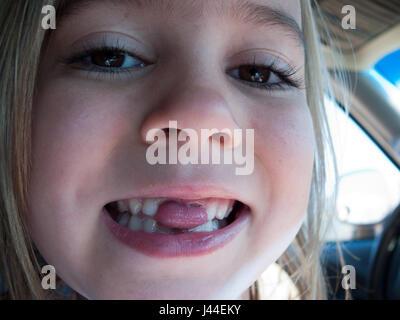Une fille sort la langue maternelle par le vide laissé par ses dents manquantes. Banque D'Images