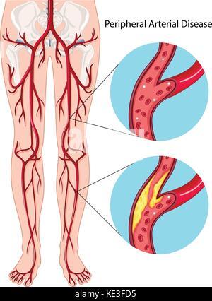 Illustration diagramme de la maladie artérielle périphérique Banque D'Images
