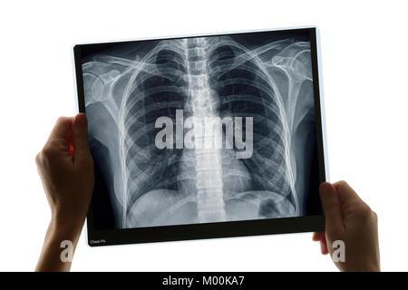 Examen d'une radiographie de Banque D'Images
