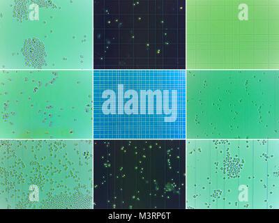 Collage de neuf vues microscopiques de levures et thoma grille de chambre.