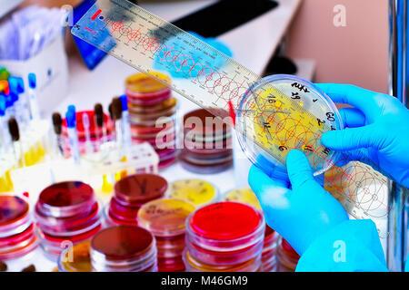 Boîte de Pétri. Laboratoire de microbiologie. Moule et cultures fongiques. La recherche bactérienne