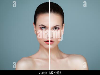 Jeune modèle Femme avec problème de peau et la peau claire Closeup Portrait. Malsaine et la santé de la peau après Banque D'Images