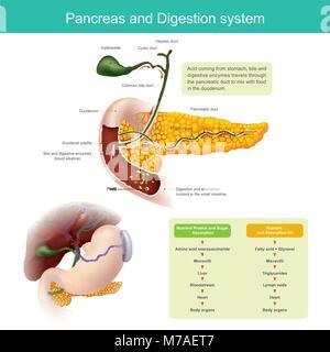 Les enzymes digestives se déplace dans le conduit pancréatique de la mélanger avec de la nourriture dans le duodénum. Banque D'Images