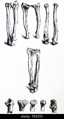 Les plaques du premier livre du De Humani Corporis Fabrica de Vésale, (1514-1564) 15 - La plaque dans la deuxième figure de la vingt-quatrième chapitre les deux os de l'avant-bras gauche, c'est, le radius et le cubitus sont représentées à partir de la surface externe (postérieur). Banque D'Images