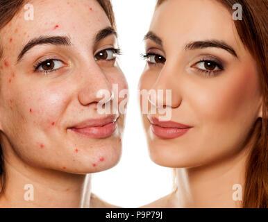 Portrait de femme même comparaison avant et après le traitement esthétique et maquillage sur fond blanc Banque D'Images