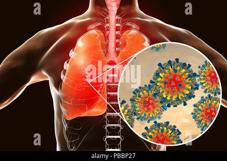 La pneumonie causée par les virus de la rougeole, l'illustration de l'ordinateur conceptuel. Virus de la rougeole, de la groupe de virus Morbillivirus, se compose d'un ARN (acide ribonucléique) noyau entouré par une enveloppe garnie de protéines de surface hémagglutinine et neuraminidase-protéine de fusion, qui sont utilisés pour fixer et à pénétrer dans une cellule hôte. La rougeole est une maladie très infectieuse éruption prurigineuse avec de la fièvre. Elle affecte principalement les enfants, mais une attaque donne généralement l'immunité à vie. La pneumonie est l'une des complications de la rougeole. Banque D'Images