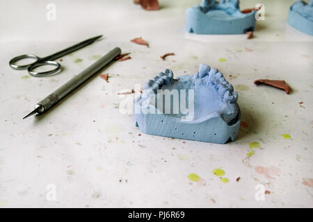 Le modèle en plâtre de la mâchoire. Prothèses dentaires, prothèses dentaires, prothèses travail. Technicien dentaire en processus de fabrication de prothèses dentaires. Le modèle en plâtre. Banque D'Images