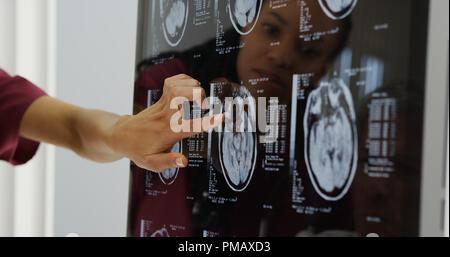 Les médecins l'examen des radiographies du cerveau Banque D'Images